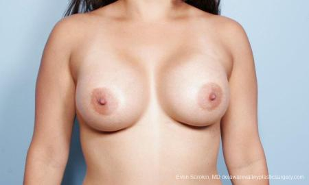 Philadelphia Breast Augmentation 9297 -  After Image 1