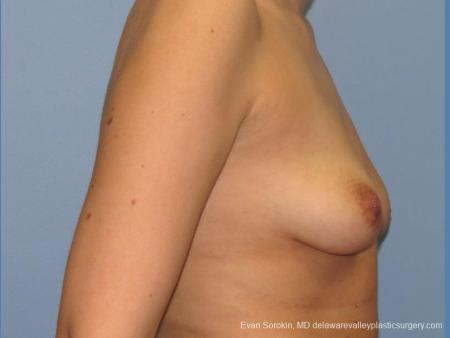 Philadelphia Breast Lift and Augmentation 10115 - Before Image 3