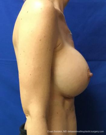 Philadelphia Breast Augmentation 13069 -  After Image 3