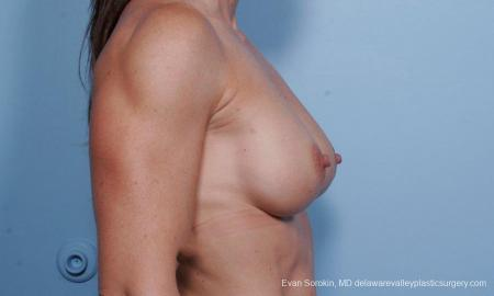 Philadelphia Breast Augmentation 9455 - Before Image 3