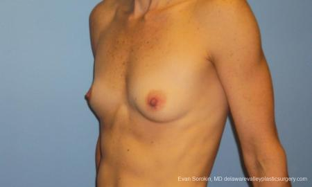 Philadelphia Breast Augmentation 10248 - Before Image 4