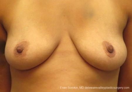 Philadelphia Breast Lift and Augmentation 8824 - Before 1