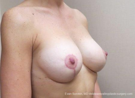Philadelphia Breast Lift and Augmentation 8683 -  After Image 2