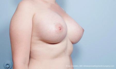Philadelphia Breast Augmentation 9419 -  After Image 2