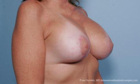 Philadelphia Breast Lift and Augmentation 9438 -  After Image 2