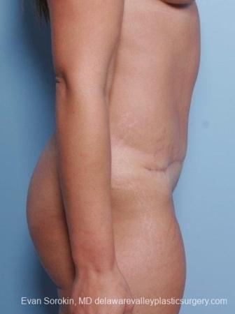 Philadelphia Abdominoplasty 8698 -  After Image 4