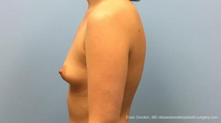Philadelphia Breast Augmentation 12540 - Before and After Image 5