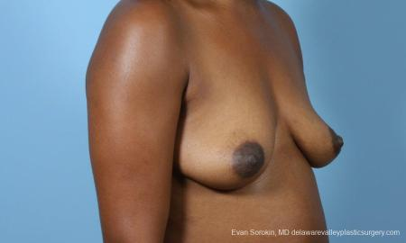 Philadelphia Breast Augmentation 9173 - Before Image 2