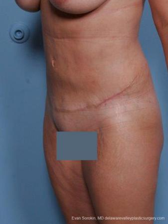 Philadelphia Abdominoplasty 9460 -  After Image 4