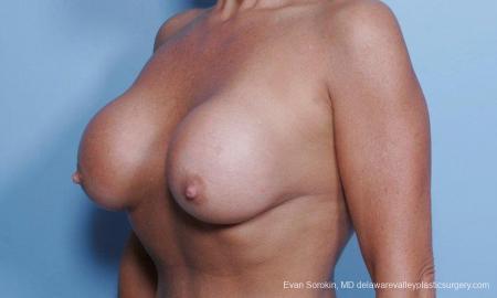 Philadelphia Breast Lift and Augmentation 9453 - Before Image 3