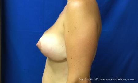 Philadelphia Breast Reduction 12512 -  After Image 5