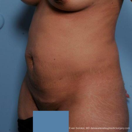 Philadelphia Abdominoplasty 9479 - Before Image 4