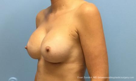 Philadelphia Breast Augmentation 12514 -  After Image 3