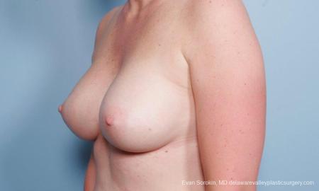 Philadelphia Breast Augmentation 8658 -  After Image 4