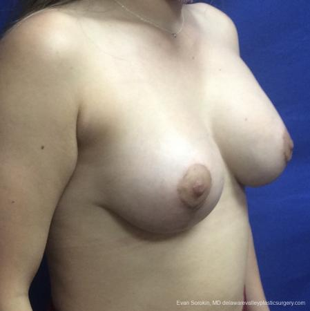 Breast Lift And Augmentation: Patient 40 - After Image 2