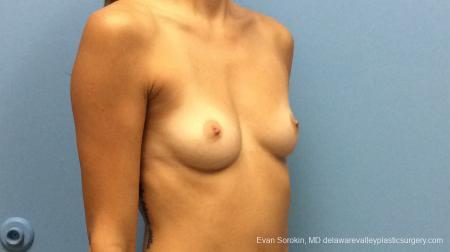 Philadelphia Breast Augmentation 13180 - Before Image 2