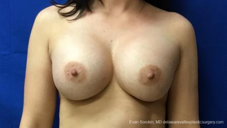 Philadelphia Breast Augmentation 12541 -  After Image 1