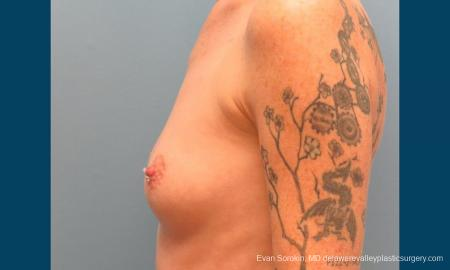 Philadelphia Breast Augmentation 9371 - Before and After Image 5