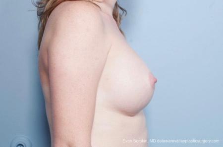 Philadelphia Breast Augmentation 8795 -  After Image 4