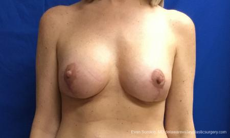 Philadelphia Breast Lift and Augmentation 10814 - After Image