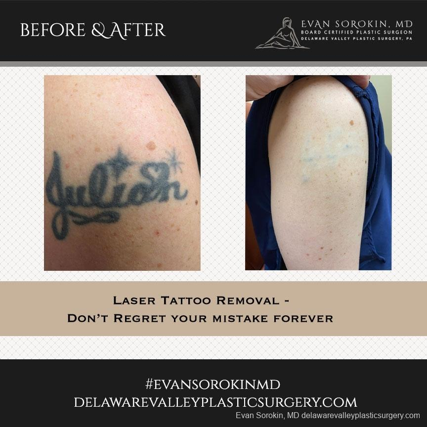 Tattoo Removal: Patient 4 - Before and After Image