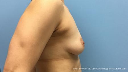 Philadelphia Breast Augmentation 12541 - Before Image 4