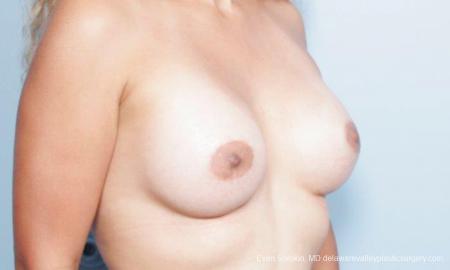 Philadelphia Breast Augmentation 9347 -  After Image 2