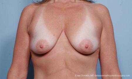 Philadelphia Breast Lift and Augmentation 9438 - Before Image 1