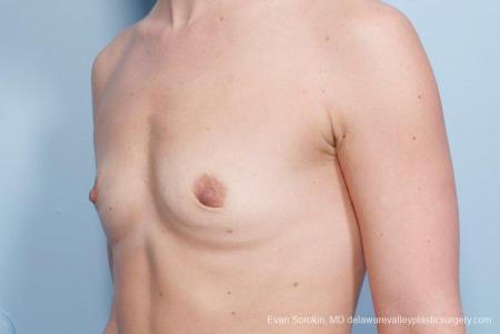 Philadelphia Breast Augmentation 8651 - Before Image 3
