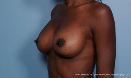 Philadelphia Breast Augmentation 8655 -  After Image 4