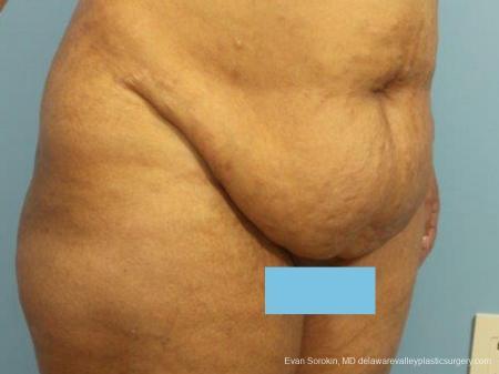 Philadelphia Abdominoplasty 9462 - Before Image 2