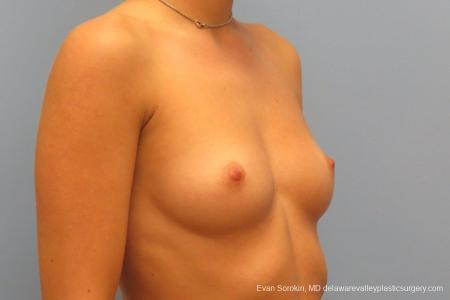 Philadelphia Breast Augmentation 8666 - Before Image 2