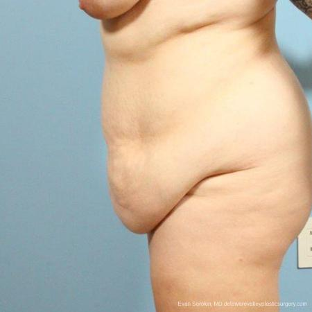 Philadelphia Abdominoplasty 9466 - Before and After Image 4