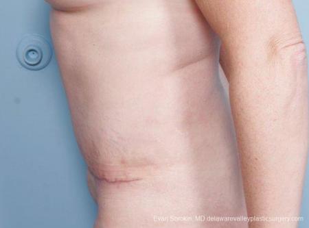 Philadelphia Abdominoplasty 9315 -  After Image 3
