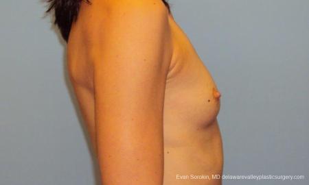 Philadelphia Breast Augmentation 9417 - Before Image 3