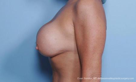 Philadelphia Breast Lift and Augmentation 9453 - Before and After Image 4