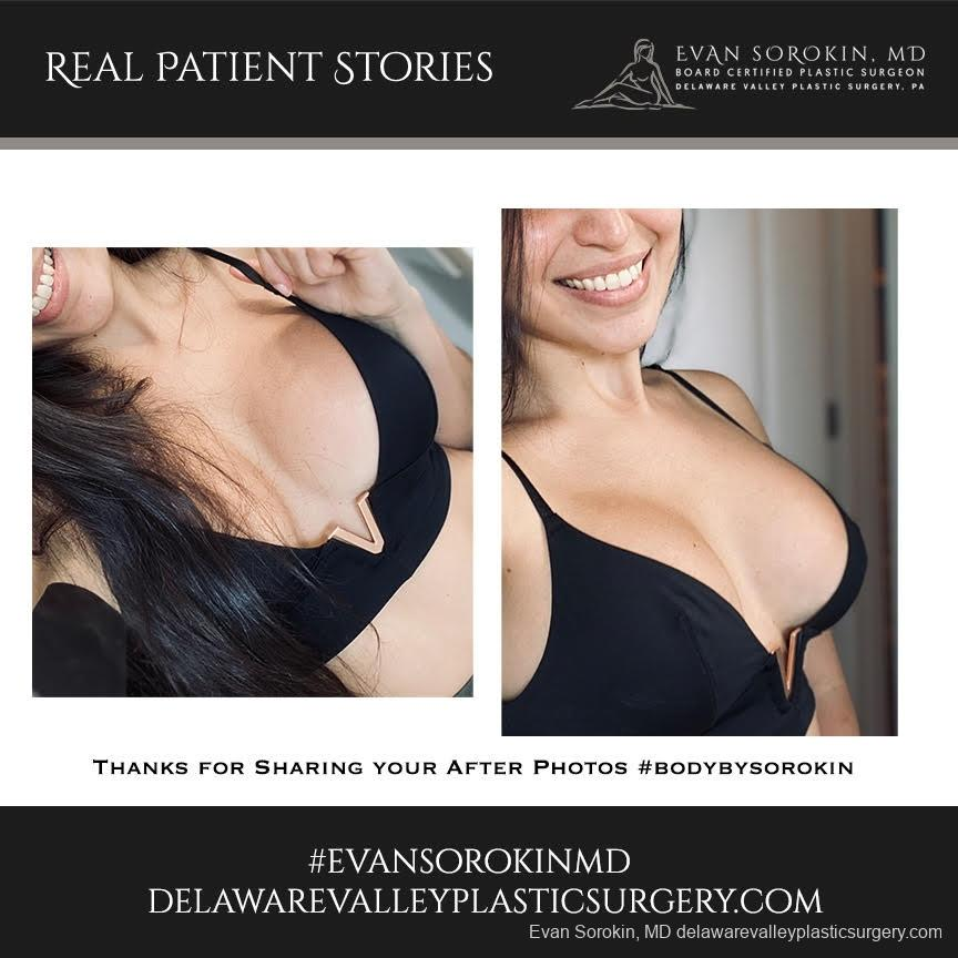 Real Patient Stories: Patient 10 - Before and After Image 1