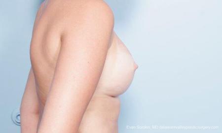 Philadelphia Breast Augmentation 9301 -  After Image 3