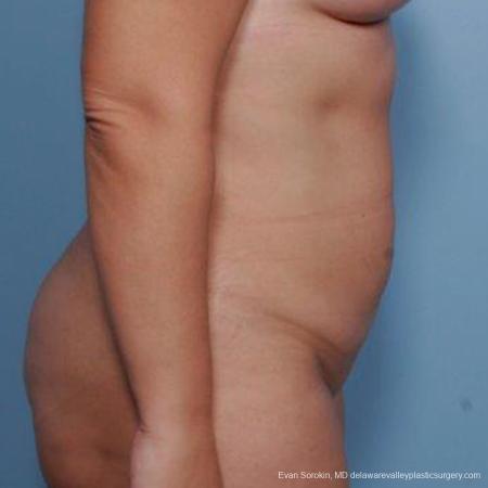 Philadelphia Liposuction 9481 -  After Image 3