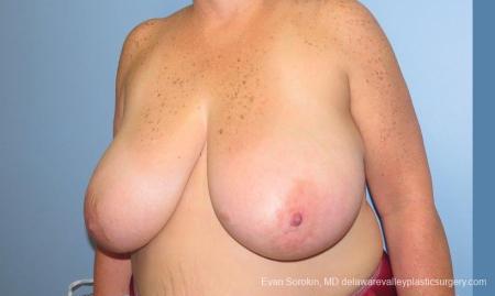 Philadelphia Breast Reduction 10118 - Before Image 4