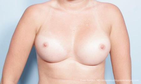 Philadelphia Breast Augmentation 9301 -  After Image 1