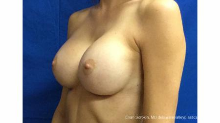 Philadelphia Breast Augmentation 13180 -  After Image 4