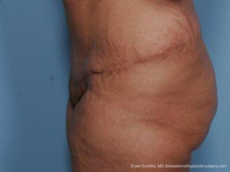 Philadelphia Abdominoplasty 9462 -  After Image 5
