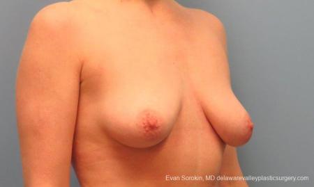 Philadelphia Breast Lift and Augmentation 10116 - Before Image 2