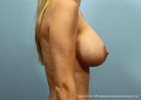 Philadelphia Breast Augmentation 9105 -  After 3