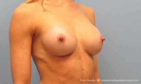 Philadelphia Breast Augmentation 9397 -  After Image 2