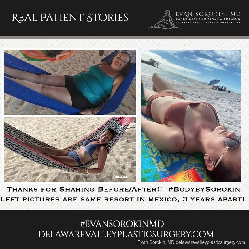 Real Patient Stories: Patient 19 - Before and After Image 1