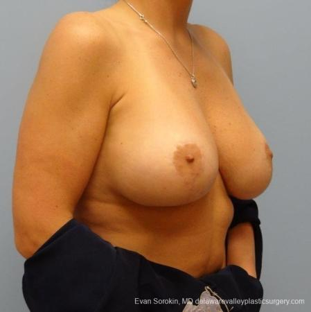 Philadelphia Breast Augmentation 8695 -  After Image 2