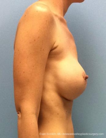 Philadelphia Breast Augmentation 13069 - Before Image 3
