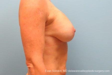 Philadelphia Breast Augmentation 8693 -  After Image 4